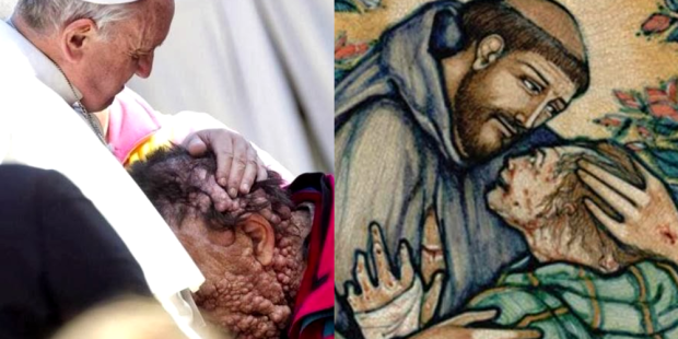 Papa Francisco abraça Vinicio; São Francisco abraça um leproso