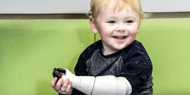 LITTLE BOY WITH 3D PRINTED ARM