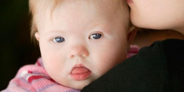 Bliski portret dziecka z syndromem Downa trzymanego na rękach przez mamę