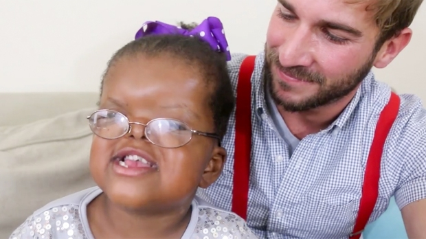 LOLA'S LIFE WITH APERT SYNDROME